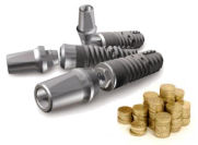 dental implants average cost