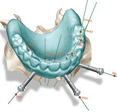 teeth-in-an-hour dental implants